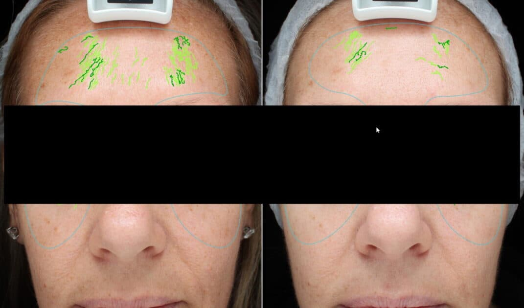 wrinkle treatment 2